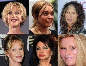 chirurgie esthétique